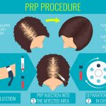 PRP for Hair Loss Bay Area