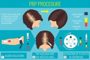PRP for hair loss in the Bay Area