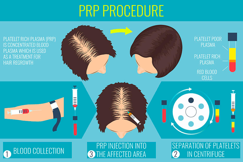 PRP may help if you suffer hair loss in San Francisco